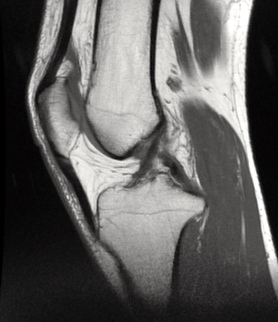 Ligament Croisé Antérieur Intact